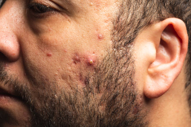 Close-up of acne on the skin, Acne on the face , wrinkle and acne inflammation on the face skin stock photo