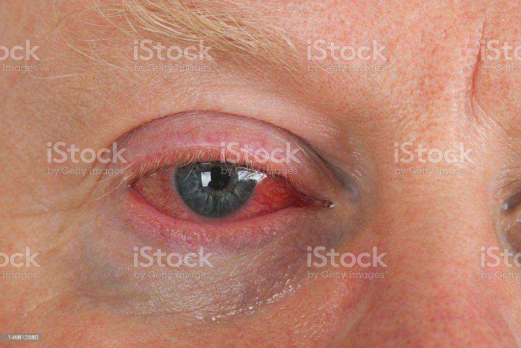 Close-up of an elderly mans bloodshot blue eye stock photo