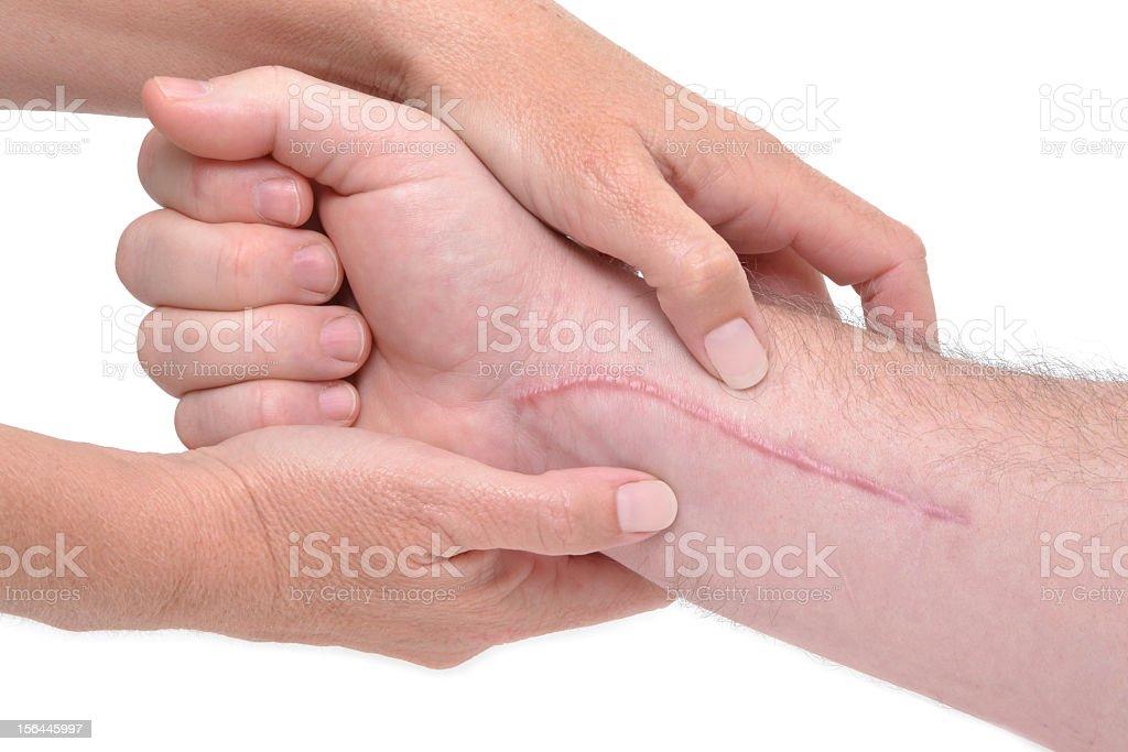 Close-up of arm massage around long scar near wrist royalty-free stock photo