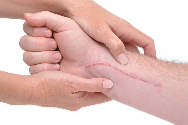 Close-up of arm massage around long scar near wrist hands massaging a arm with scar scar stock pictures, royalty-free photos & images