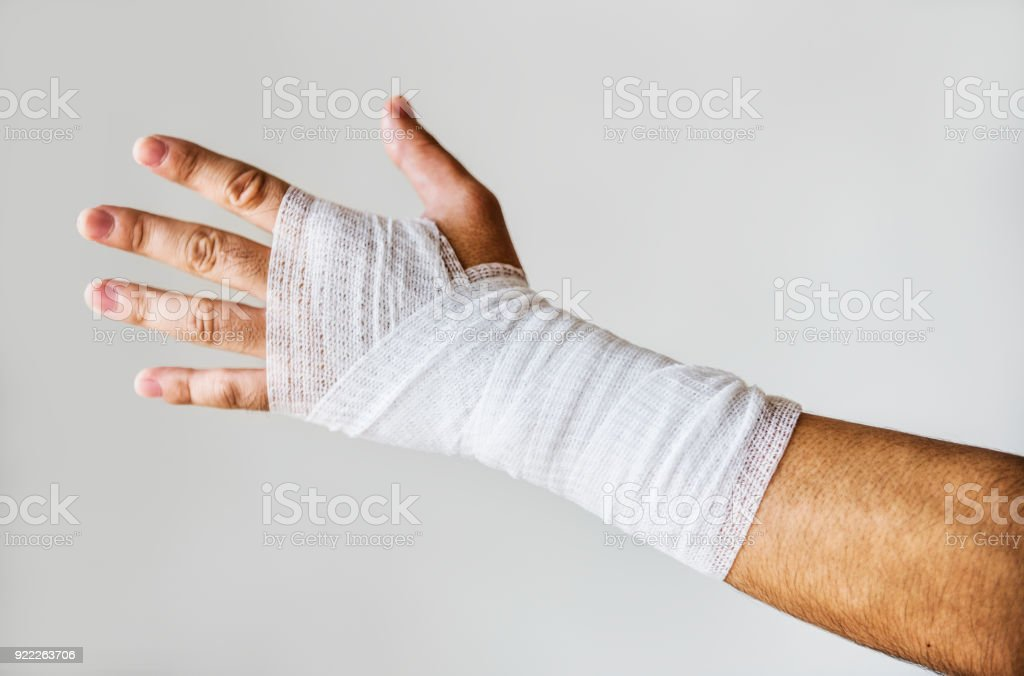 Closeup of arm wrapped with medical gauze stock photo