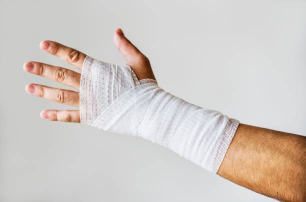 Closeup of arm wrapped with medical gauze Closeup of arm wrapped with medical gauze bandage stock pictures, royalty-free photos & images