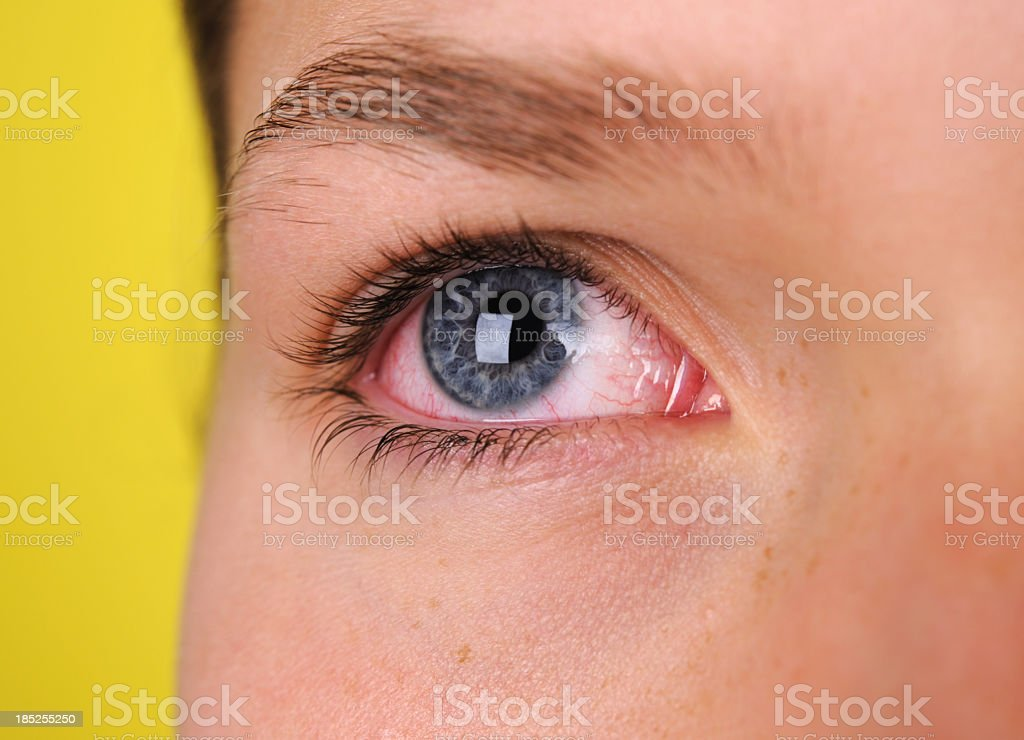 A close-up of blue eye that is bloodshot stock photo
