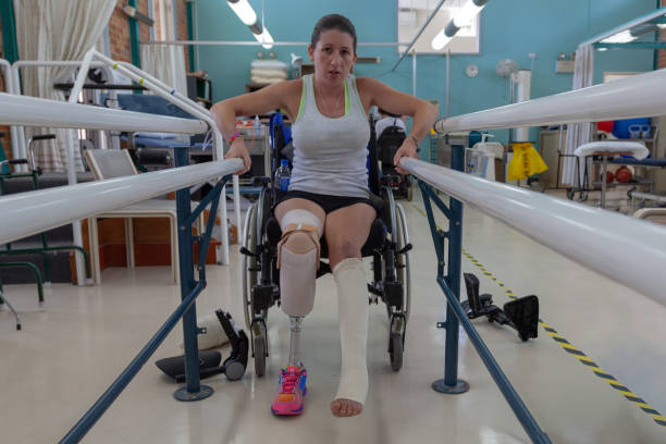 Close-up of broken left leg and new prosthetic on left with limb amputated below the knee Close-up of broken left leg and new prosthetic on left with limb amputated below the knee. The patient about to bear weight and stand for the first time since the boat explosion. defeat stock pictures, royalty-free photos & images