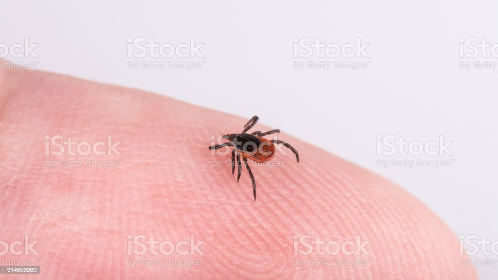 Close-up of castor bean tick on a human finger skin. Ixodes ricinus stock photo