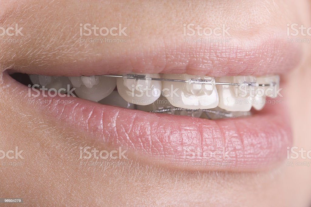 A close-up of clear braces on teeth royalty-free stock photo