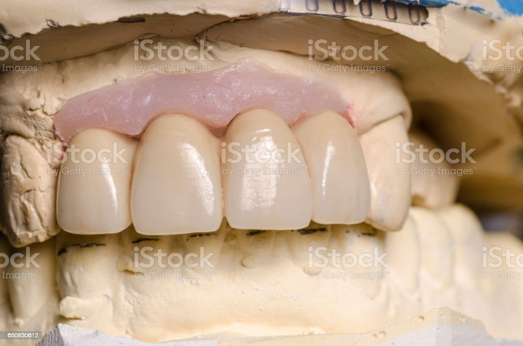 Closeup of dental prosthesis porcelain teeth in a mold - Photo