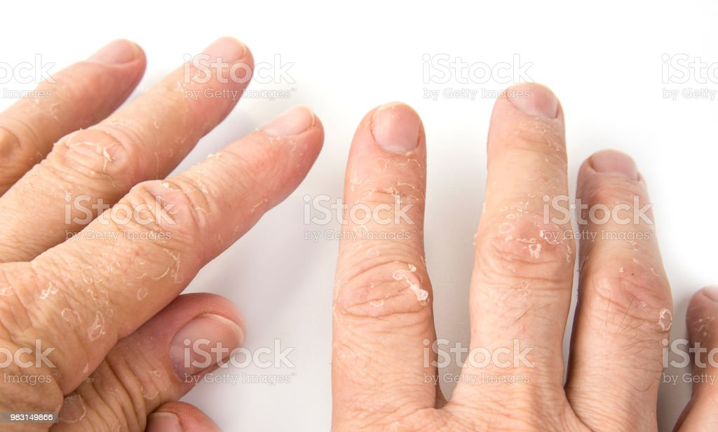 https www istockphoto com tr foto c4 9fraf egzama cilt soyma ile erkek parmaklar c4 b1 closeup gm983149866 266897876