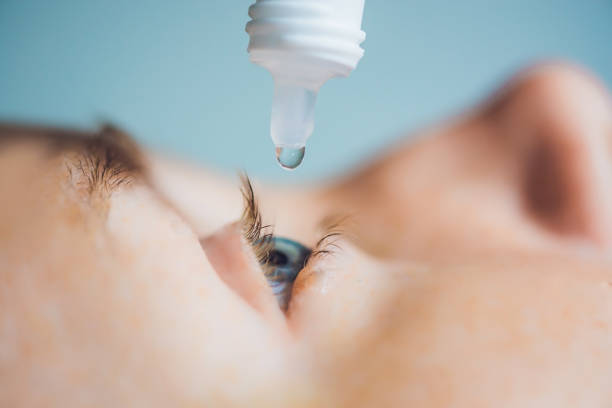 closeup of eyedropper putting liquid into open eye - dry stock photos and pictures