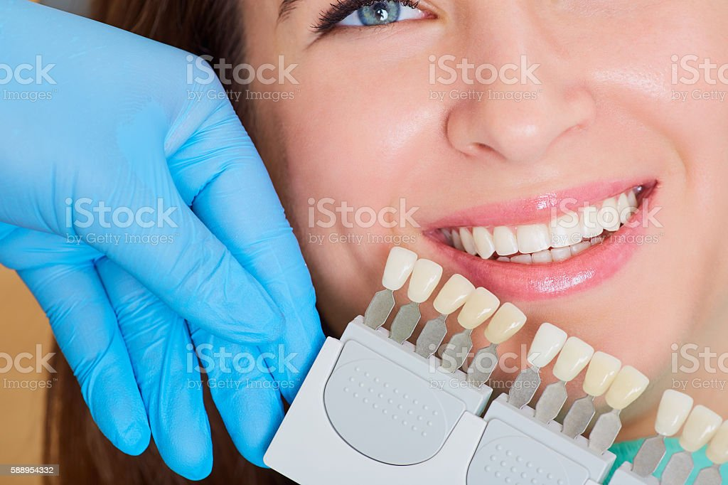 Close-up of  girl with a beautiful smile  dentist.  Denta stock photo