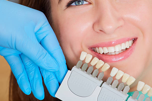 Close-up of  girl with a beautiful smile  dentist.  Denta Close-up of a girl with a beautiful smile at the dentist.  Dental care concept. Set of implants with various shades of tone tooth crown stock pictures, royalty-free photos & images