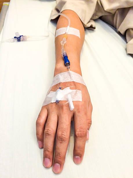 Close -up of 病院患者の IV ライン ストックフォト