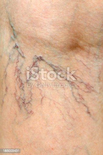istock Close-up of Human Spider Veins on Leg 185003431