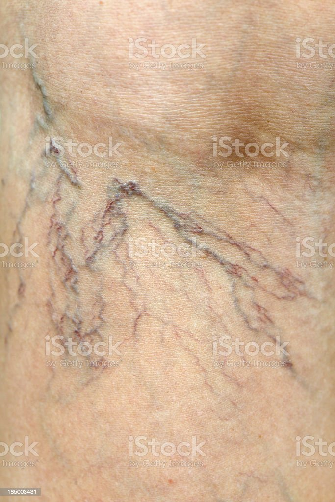 Close-up of Human Spider Veins on Leg stock photo