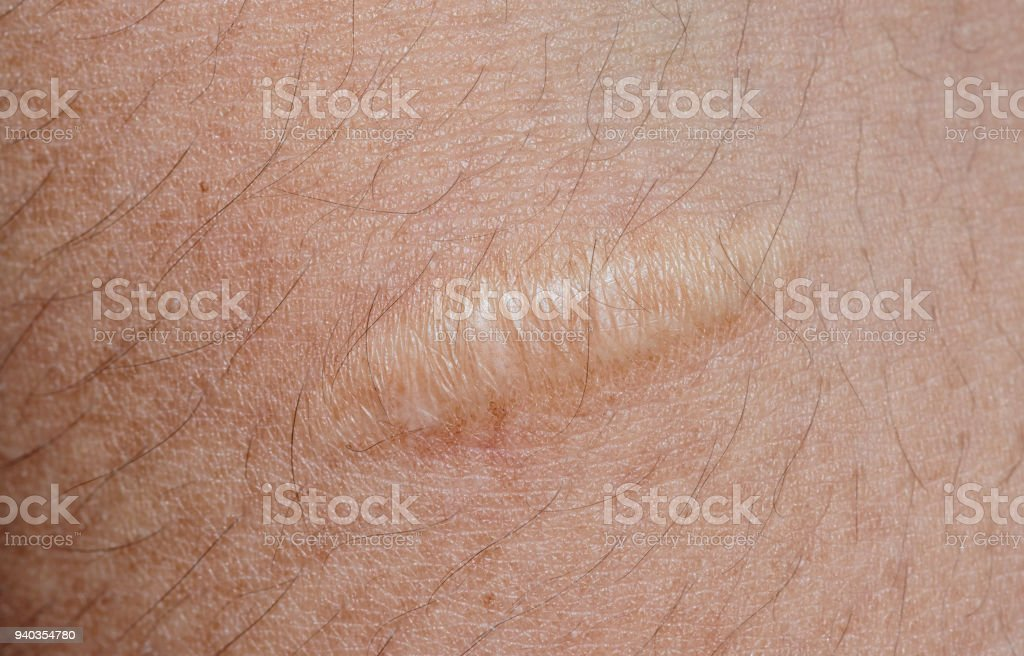 closeup of keloid scar on skin background royalty-free stock photo