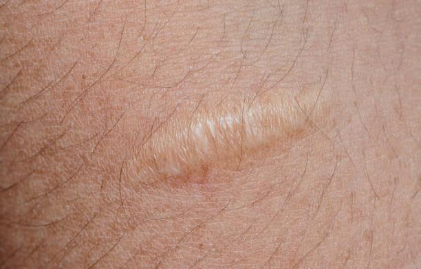 closeup of keloid scar on skin background stock photo