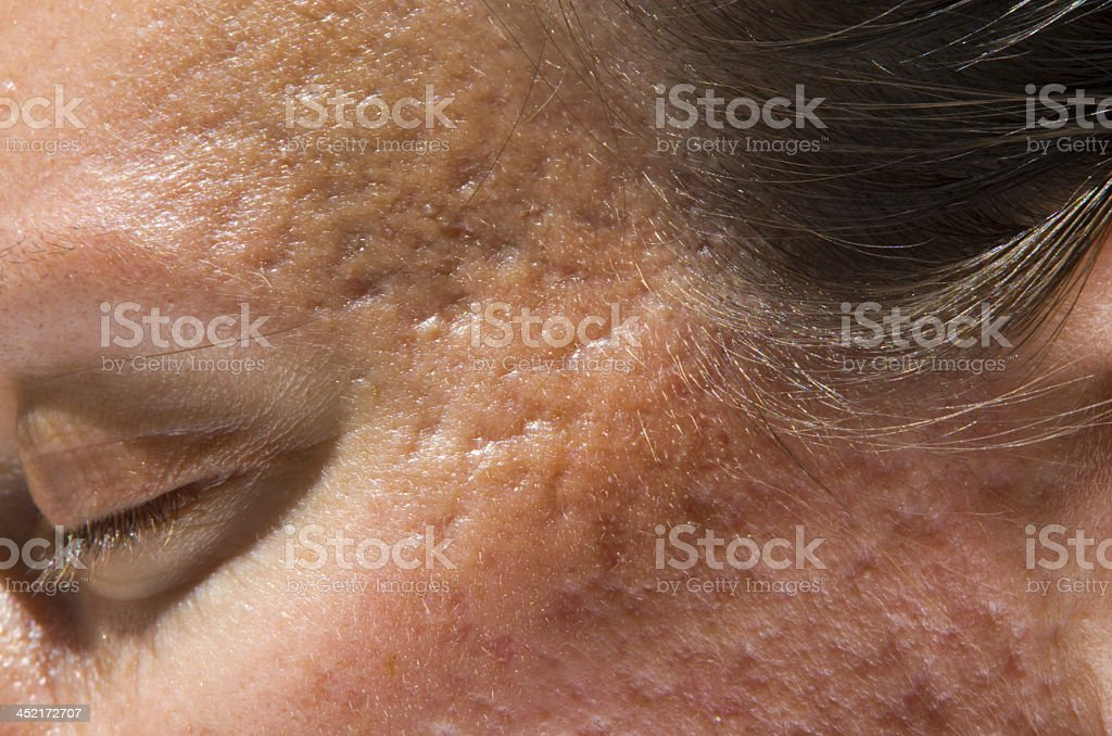 Close-up of lady's face with acne scars stock photo