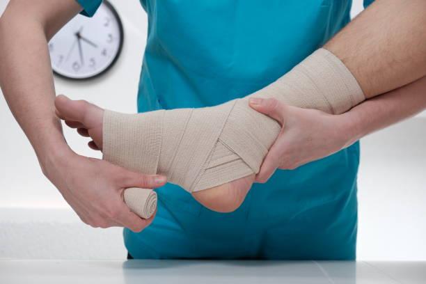 close-up of male doctor bandaging foot of female patient - caviglia foto e immagini stock