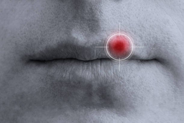 Close-up of male lips, infected with herpes virus. The target icon is aimed at the center of pain. Close-up of male lips, infected with herpes virus. The target icon is aimed at the center of pain. Copy space for your text herpes stock pictures, royalty-free photos & images