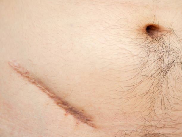Closeup of man showing the stomach with a scar from appendicitis surgery. stock photo