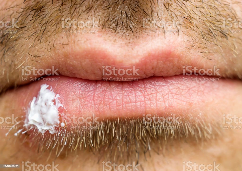 Close-up of men's lips with a cold sore.  Herpes labialis infection, selective focus. stock photo