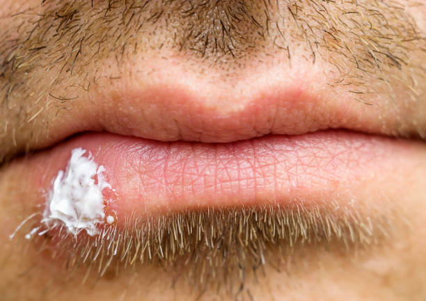 Best Cold Sore Stock Photos, Pictures & Royalty-Free Images