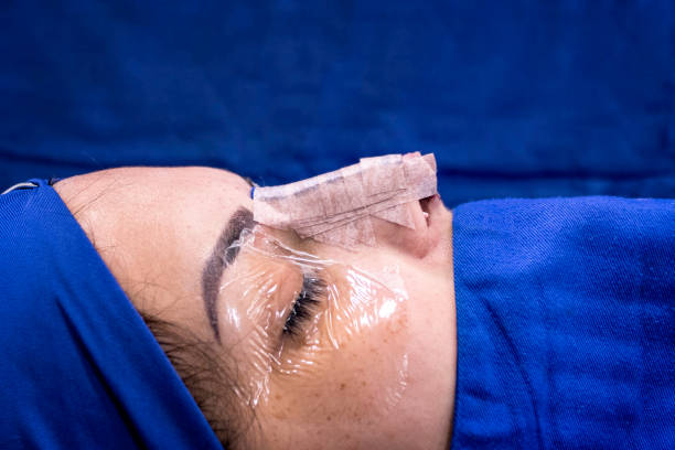 Close-up of nose profile image of female patient after nasal septun deviation and rhinoplasty surgery. stock photo