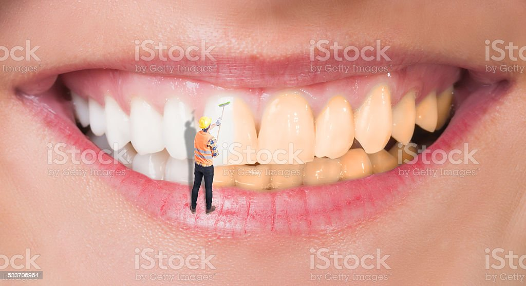 Close-up of perfect smile before and after bleaching stock photo