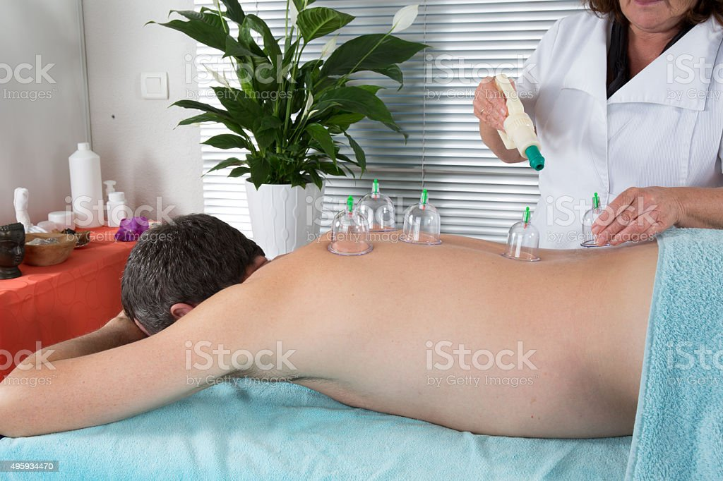 Close-up Of Person Hand Giving Cupping Treatment To man stock photo