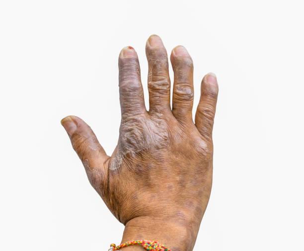 gros plan du psoriasis sur les mains des agriculteurs isolés sur fond blanc, maladie de peau dermatologie. déformation de psoriasis de doigts. - psoriasis photos et images de collection
