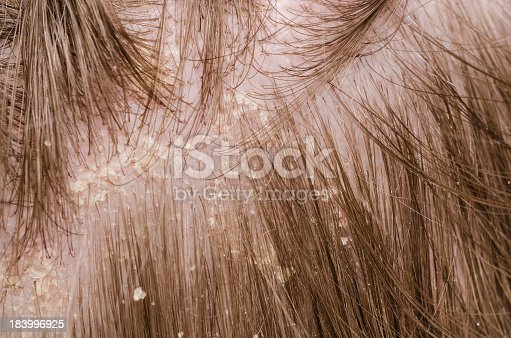 istock Close-up of scalp with dandruff flakes and brown hair 183996925