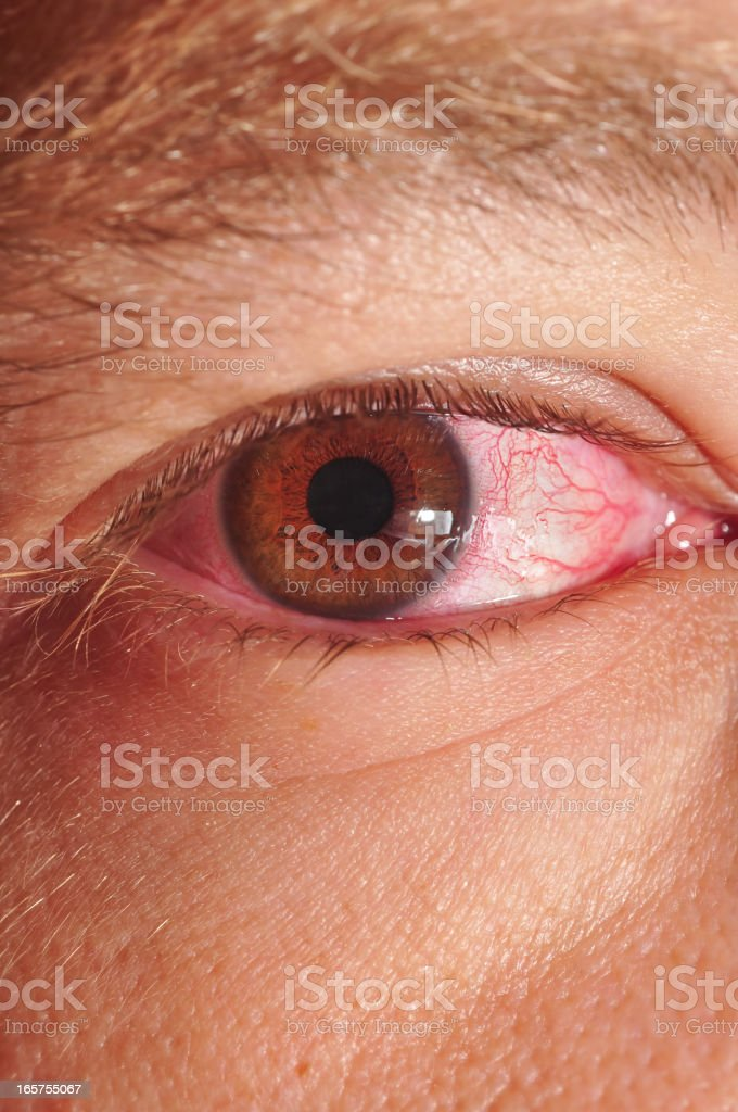 Close-up of someone with pinkeye royalty-free stock photo