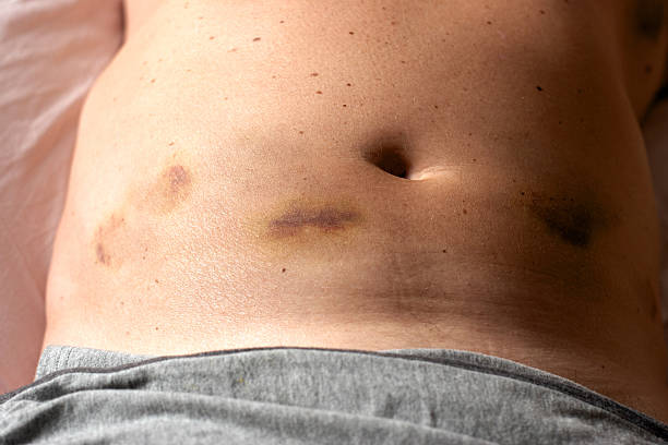 Close-up of stomach showing bruising after injection stock photo