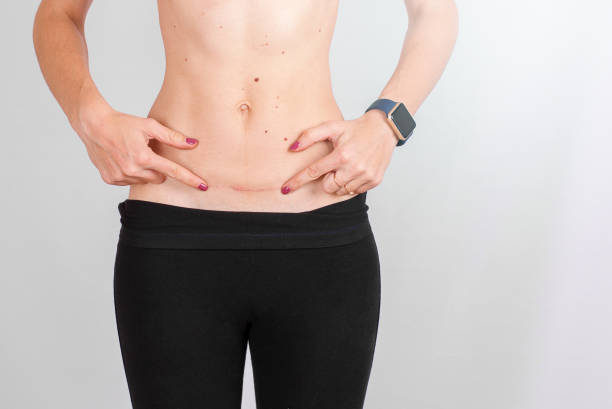 Closeup of woman belly with a scar from a cesarean section stock photo