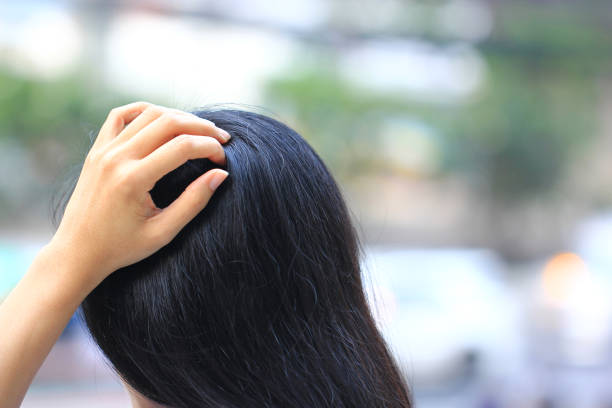 Close-up of woman hand itchy scalp fungus, Haircare concept Close-up of woman hand itchy scalp fungus, Haircare concept human scalp stock pictures, royalty-free photos & images