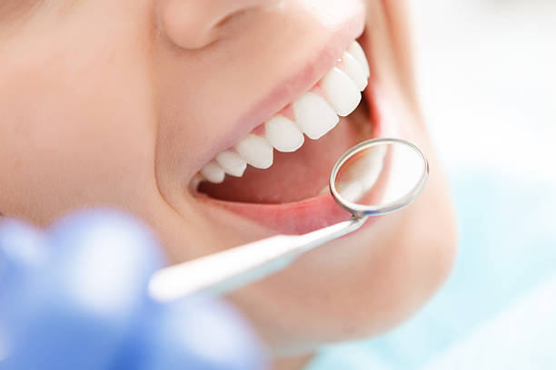 close-up of woman having her teeth examined - dentist stock photos and pictures