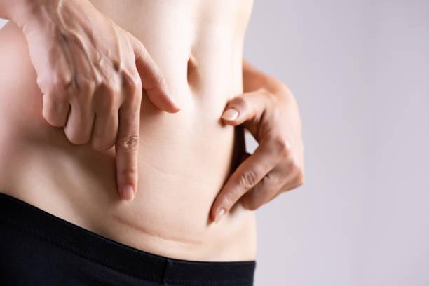 närbild av kvinnan visar på magen mörkt ärr från ett kejsarsnitt. hälso-och sjukvårds koncept. - ärr bildbanksfoton och bilder