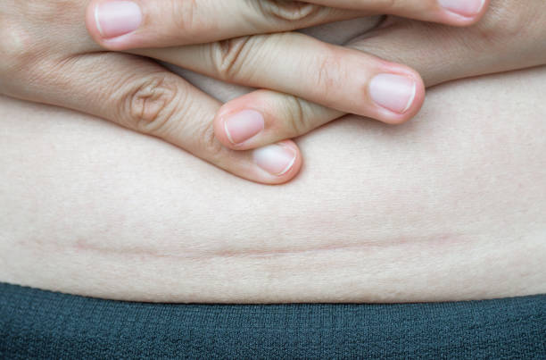 Closeup of woman showing on her belly dark scar from a cesarean section. stock photo