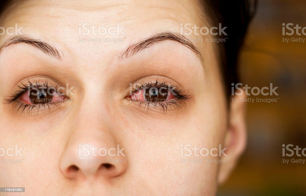 Close-up of woman with pink whites of her eyes stock photo