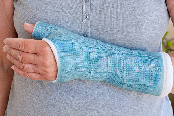 Close-up of woman's arm in blue cast stock photo