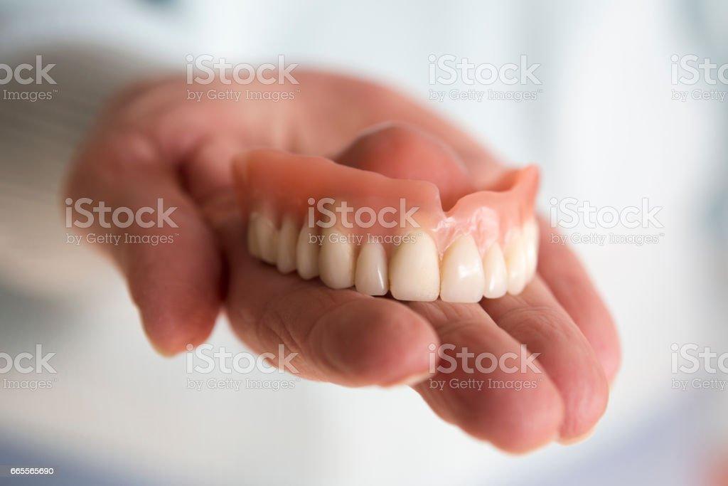 closeup of womans hand holding a teeth denture – Foto