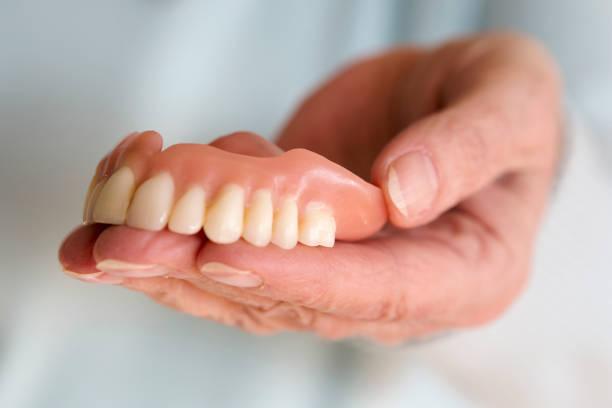 closeup of womans hand holding a teeth denture - Photo
