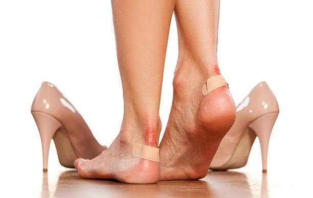 Closeup of  women's heels with a blister plaster on stock photo