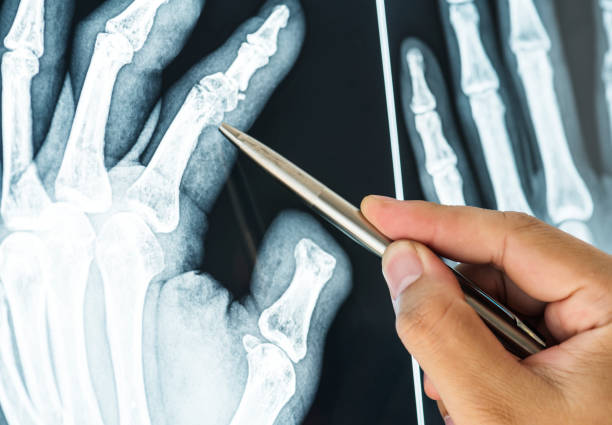 Closeup of x-ray film of a fractured finger stock photo