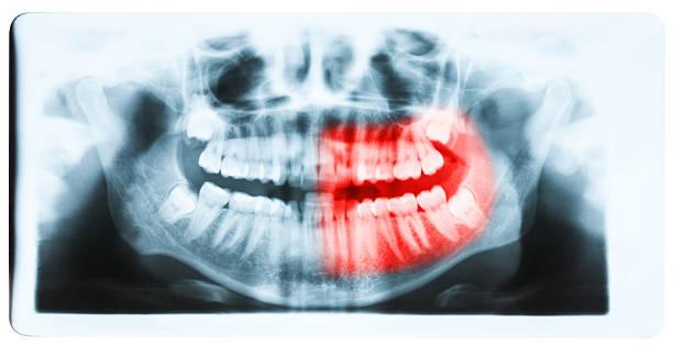 gros plan de la bouche et aux rayons x des dents-image - canidés photos et images de collection