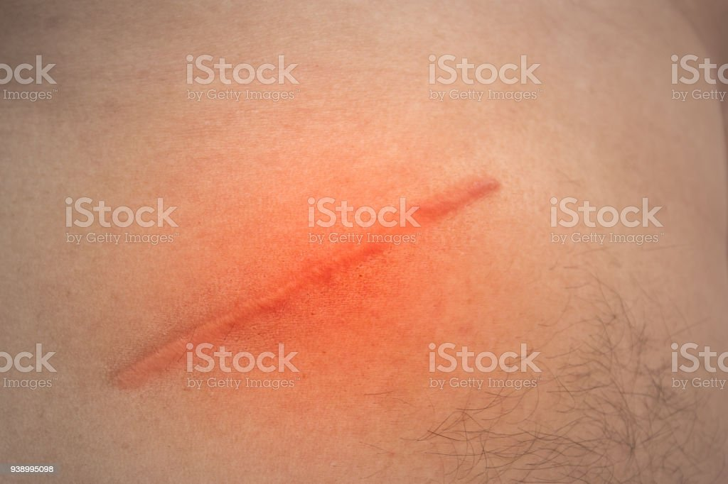 Closeup of young man with large scar after surgery on abdomen, removal of appendicitis. royalty-free stock photo