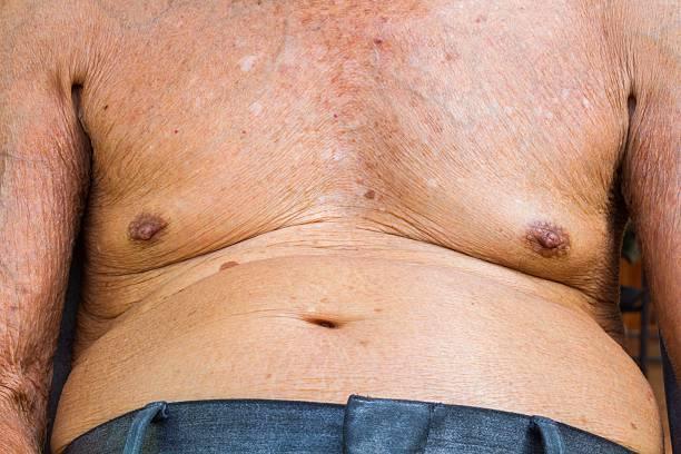 Nahaufnahme der alte Mann Brust mit Struktur – Foto