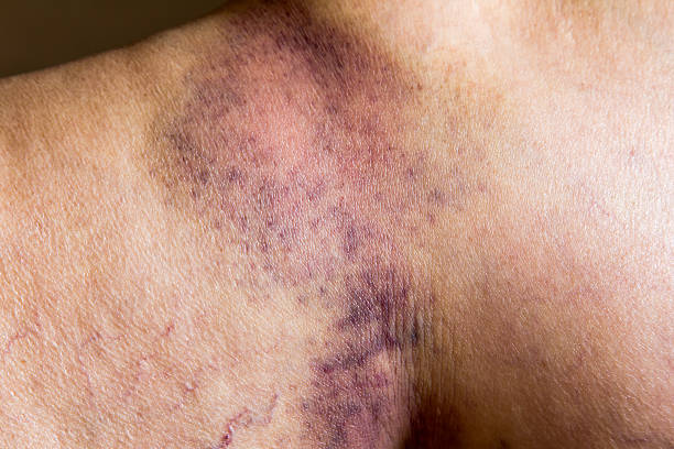 closeup on a bruise on wounded old woman leg skin - blauwe plek stockfoto's en -beelden