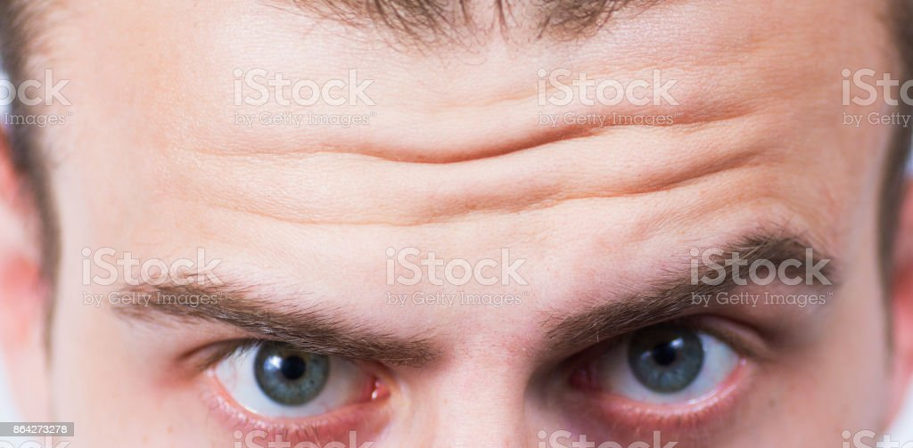 Close-up on wrinkled forehead royalty-free stock photo
