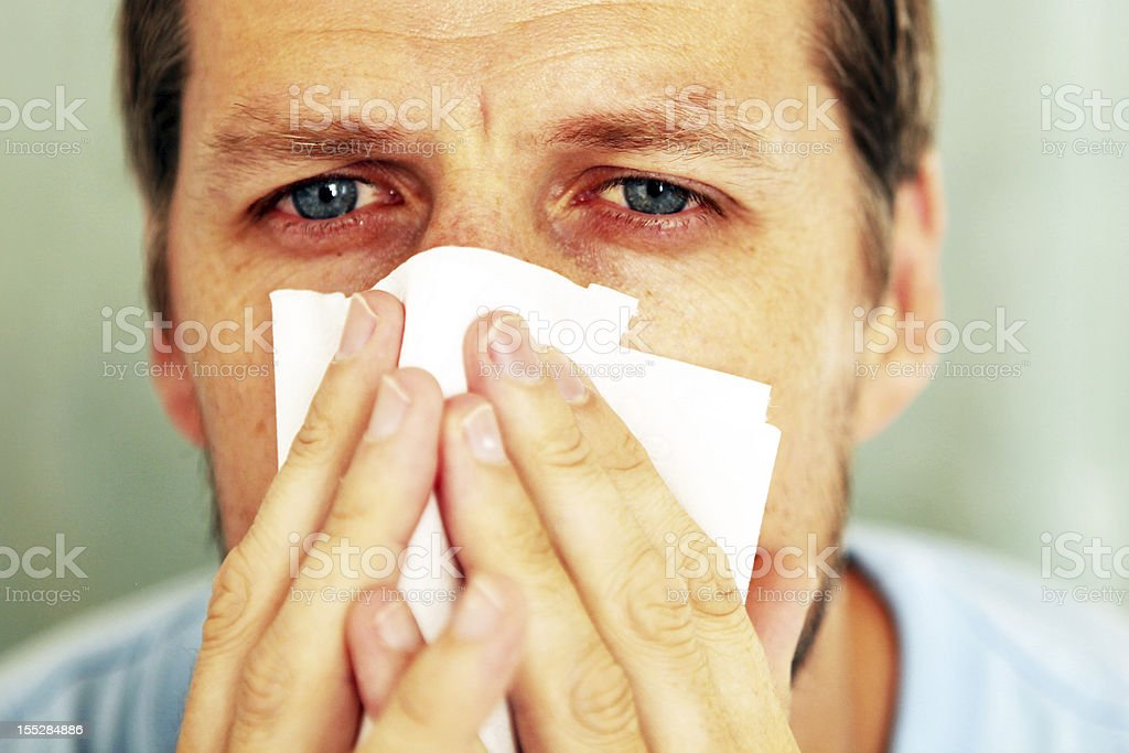 Closeup portrait of red eyed man holding tissue to his nose royalty-free stock photo